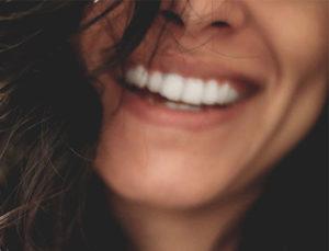 dientes_blancos
